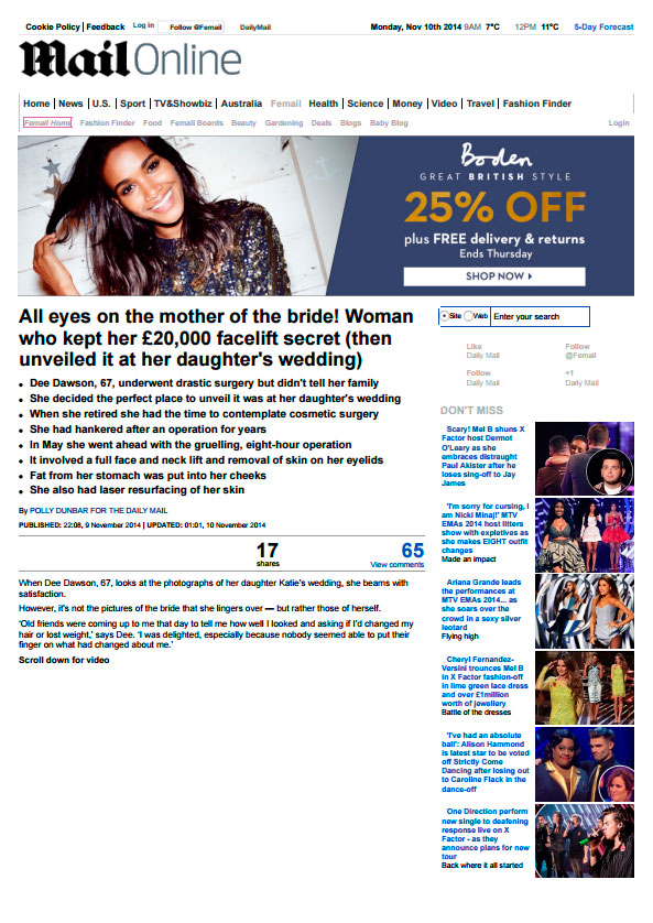 Dr. De Silva featured on Mail Online and chosen to perform a full face and neck lift
