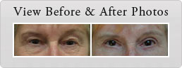 photos Before After laser resurfacing - banner