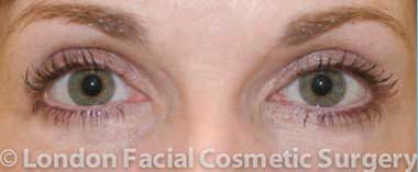 photo blepharoplasty after