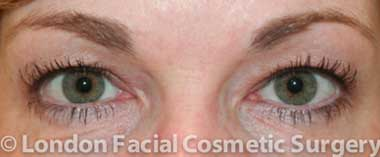 before blepharoplasty female patient