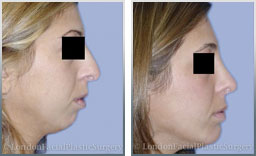 images female Pre-Op and Post-Op chin implants