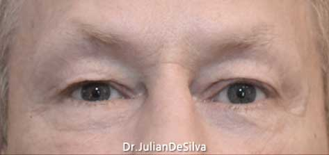 pic before eyelid surgery male patient