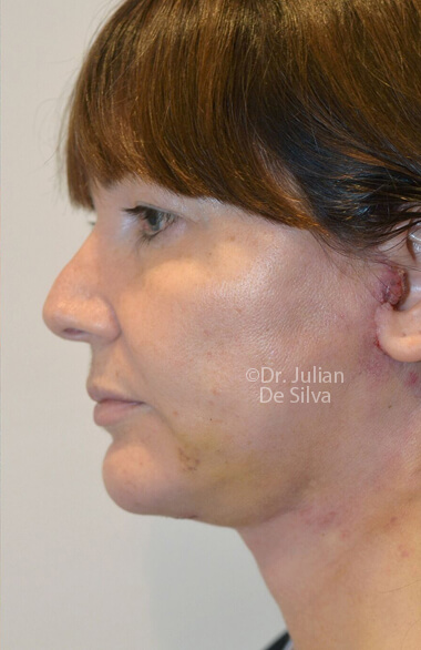 Photo: Facelift (Rhytidectomy) - AfterTreatment - Female, right side view