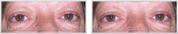 images patient Pre-Op and Post-Op upper eyelid surgery