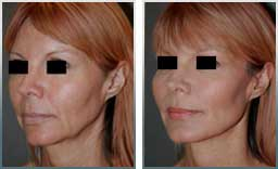 photos female patient before and after non-surgical facelifting