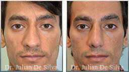 images Male before & after Rhinoplasty