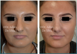 images female before & after Rhinoplasty