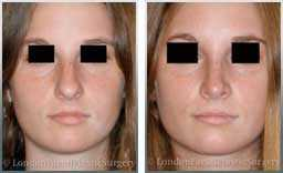 pics female before & after nose re-shaping rhinoplasty