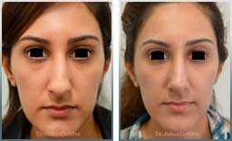 before & after nose re-shaping rhinoplasty - images