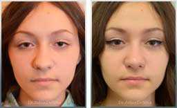 images Female before & after Nose Re-Shaping