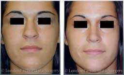 Female patient before & after Nose Re-Shaping - photos