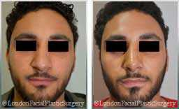 male patient before and after Nose Re-Shaping - pics