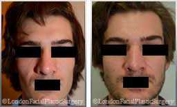 images patient Pre-Op and Post-Op nose re-shaping rhinoplasty