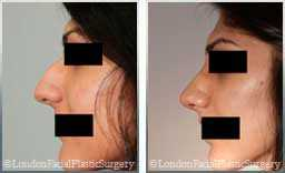 Female before & after Rhinoplasty - side view