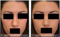 Female patient before and after  Nose Re-Shaping - images