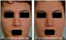 photos Female before & after Rhinoplasty