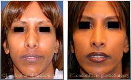 images female patient before and after rhinoplasty