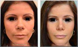 images Female patient before & after  Nose Re-Shaping
