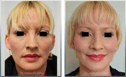 pics Female before & after Rhinoplasty