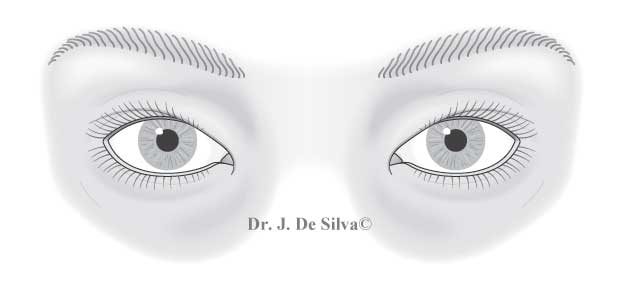 Asian Blepharoplasty - image