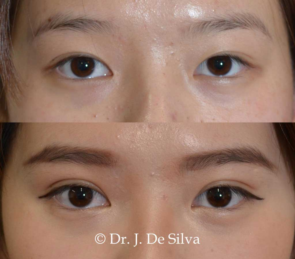 Asian blepharoplasty- Dr Julian De Silva Signature Suture Method
