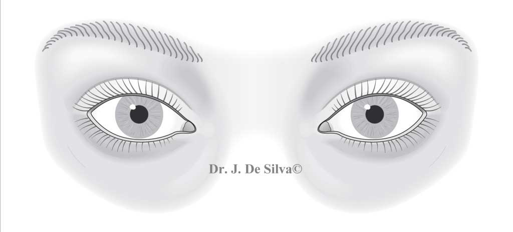 Fig 1. Surface Anatomy Eyes - Caucasian woman copy