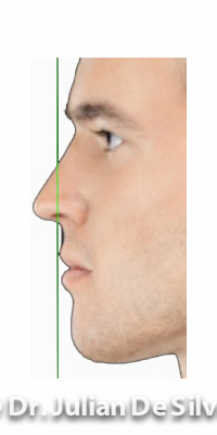 Chin Normal Anatomy in Man - figure