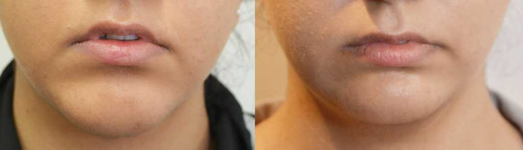 Displaced Chin Implant Before & After 1 week