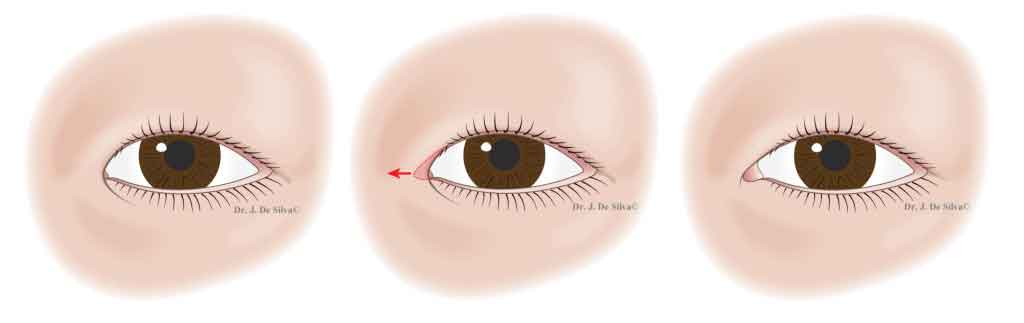 Asian Blepharoplasty: Magic epicanthoplasty