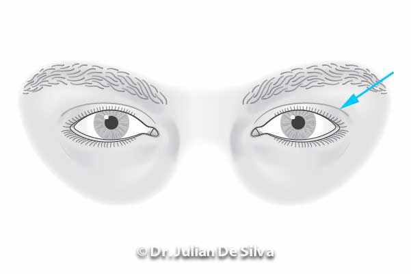 Male Blepharoplasty - Figure