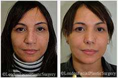 Female patient before & after Nose Re-Shaping
