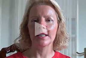 youtube video Testimonial female paient post-op blepharoplasty