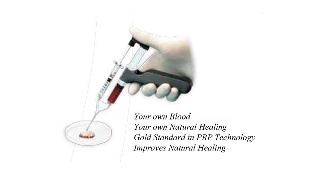 PRP Injection Photo