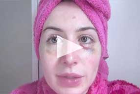 diary female patient Post-Op revision - rhinoplasty - video