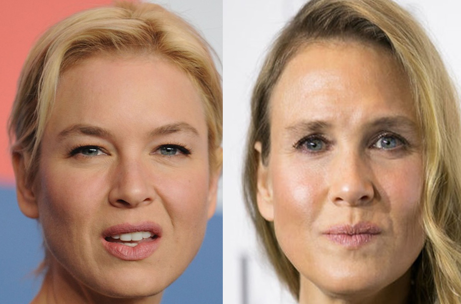 The Reason Ren 233 E Zellweger Looks So Different