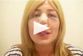 video after Revision Rhinoplasty female patient