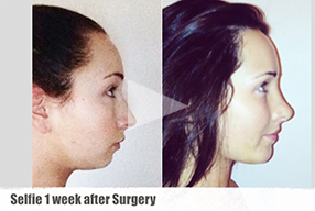 Rhinoplasty Review, Selfie & Testimonial