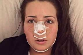 Rhinoplasty & Chin Implant Video Diary Day 2 After Surgery