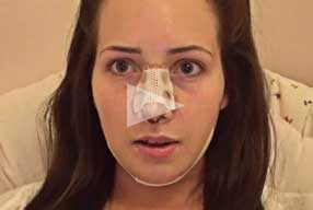 Rinoplasty & Chin Implant Video Diary Day 6 After Surgery