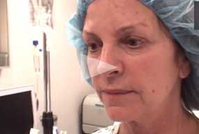 Facelift & Neck Lift Video Diary Before Surgery