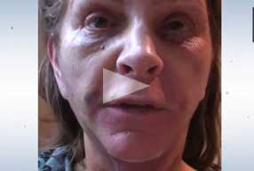 Facelift & Neck Lift Video Diary Day 5 After Surgery