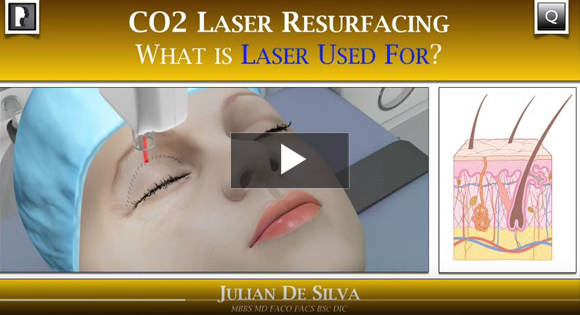How can CO2 Laser Skin Resurfacing benefit me?