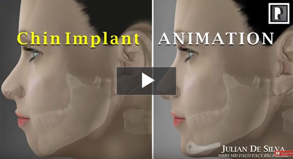 How is a chin implant inserted?