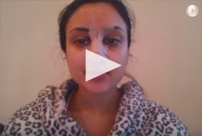 13 Ethnic Rhinoplasty Video Diary Day 13 After surgery - video