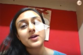 14 Ethnic Rhinoplasty Video Diary Week 3 After surgery