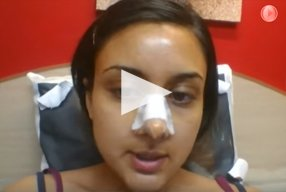 5 Ethnic Rhinoplasty Video Diary Day 4 After surgery - video