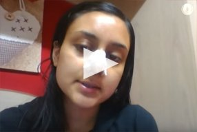 6 Ethnic Rhinoplasty Video Diary Day 5 After surgery - video
