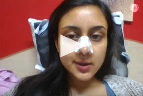 9 Ethnic Rhinoplasty Video Diary Day 8 After surgery - video