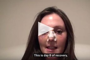 Rhinoplasty Video Diary –Day 8 After surgery, 10 of 18 - video