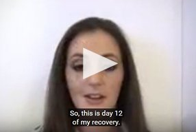 Rhinoplasty Video Diary –Day 12 After surgery, 14 of 18 - video